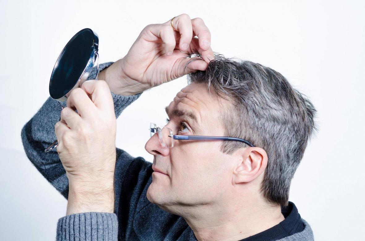 علل و درمان سفیدی مو