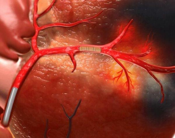 ساخت بیومواد پلیمری با قابلیت استفاده در ایمپلنت های قلبی با نانومواد آلی